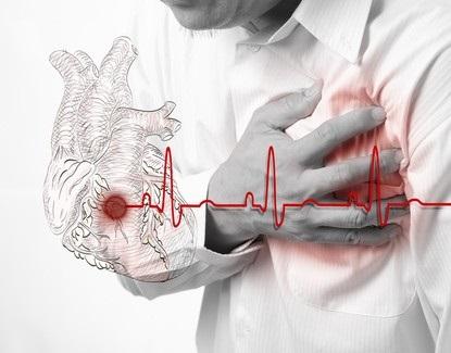 7-habitos-no-escritorio-que-podem-te-levar-ao-infarto-televendas-cobranca
